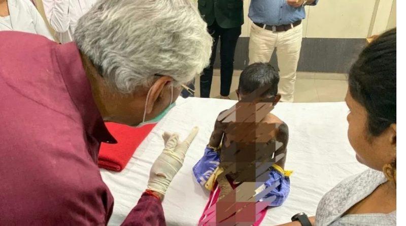 छत्तीसगढ़ में इकथायोसिस का पहला केस रिपोर्टेड, अब तक भारत में तीन केस दर्ज..इस रोग में मरीज़ की त्वचा पर छाल की तरह चमड़ी बनती है..
